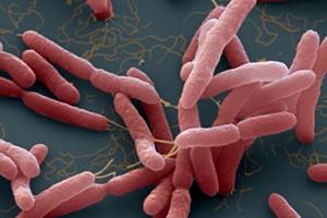 Ba chị em tử vong tại Hà Nội vì nhiễm khuẩn