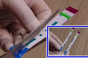 Cắt đôi que thử HIV ở Bệnh viện Xanh Pôn: Có dấu hiệu hình sự