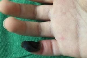 Tự lên mạng mua thuốc chữa mụn cóc, bé gái bị hoại tử ngón tay