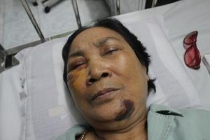 Hải Dương: Phạt kẻ hành hung bà già 7 tháng tù