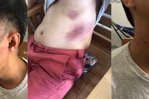 Người đàn ông dính đa chấn thương sau khi bị tạm giữ ở Phú Quốc