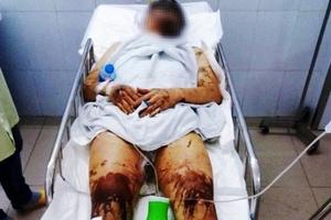 Quảng Ngãi: 2 Việt kiều bị người lạ mặt tạt axit, cắt gân chân
