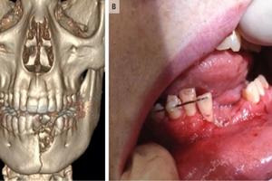 Thuốc lá điện tử phát nổ, thiếu niên 17 tuổi vỡ đôi xương hàm