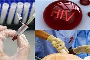 Tiếp xúc kim tiêm dính máu nhiễm HIV, phải xử trí thế nào?