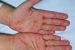 Có 12 ca nghi mắc bệnh tay chân miệng ở Hà Nội