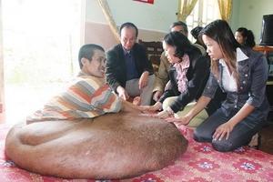 Chuẩn bị phẫu thuật người có khối u hơn 80 kg