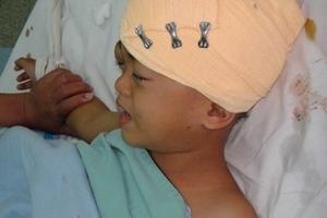 Bé trai 5 tuổi bị chém nứt sọ vì mẹ đánh bạc