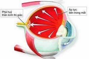 Tự ý nhỏ thuốc mắt có thể bị mù vĩnh viễn