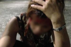Người phụ nữ bị nhân tình của chồng đánh gây thương tích