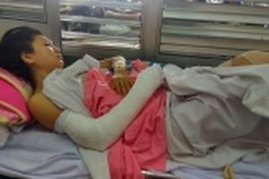 Lời kể kinh hoàng của cô gái bị ngã gãy tay chân vì đuổi theo hai tên cướp