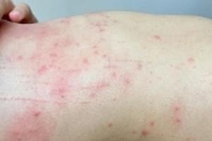 Người dân nổi mẩn ngứa khi tắm ở biển Đà Nẵng: Du khách lại không ảnh hưởng?