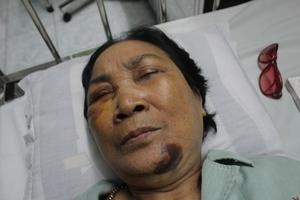 Hải Dương: Cần sớm làm rõ vụ người phụ nữ bị hành hung tại chợ Giống