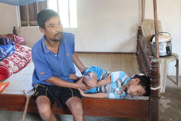 Cha con anh Trần Quốc Long chỉ biết ngồi nhìn nhau bên những đôi chân đang dần bị hoại tử