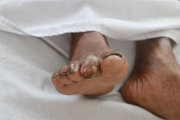 Tại ngón 2, bàn chân phải của bệnh nhân lở, loét được nghi ngờ là vị trí để vi khuẩn Burkholderia Pseudomallei xâm nhập