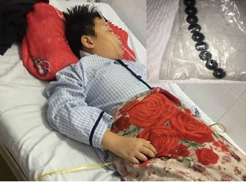 Bé trai 10 tuổi hoại tử ruột vì nuốt 9 viên bi nam châm - ảnh 2